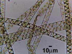 geen algal filaments spirogyra